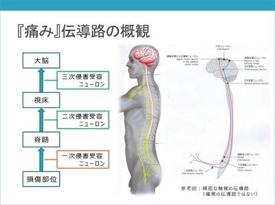 疼痛の基本1-1.jpg