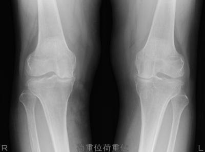 knee150505.jpg